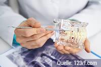 Krankenkassentest: Mehrleistungen Zahnersatz oder Zahnersatz zum Nulltarif