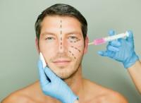 Schönheits-OPs liegen im Trend: Auch Männer lassen liften