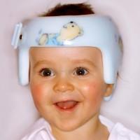 Helmtherapie bei Kleinkindern