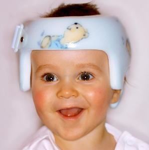 Helmtherapie bei Kleinkindern ,  (c) Netzwerk Helmtherapie