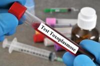 Krankenkassentest: Toxoplasmose-Test