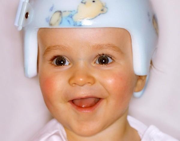 Helmtherapie für Kinder