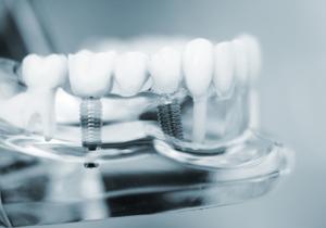 Zahnimplantate benötigen Verankerungen im Kiefer,  (c) fotolia.com / edwardolive