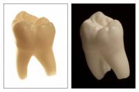 Zahnersatz und Zahnfüllungen könen aus Kunststoff, Amalgam oder Keramik gefertigt sein.