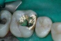 Zahnfüllung aus Gold