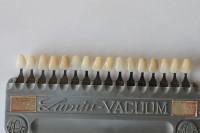 Bei Zahnfüllungen aus Keramik kann die Zahnfarbe optimal angepasst werden.eramik