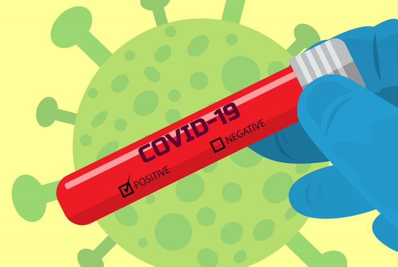 Test auf Coronaviren