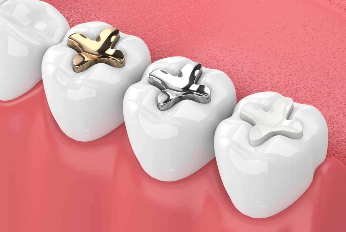 Zahnfüllungen aus Amalgam sollen verboten werden