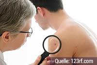 Intimbereich hautkrebsvorsorge Haut Screening