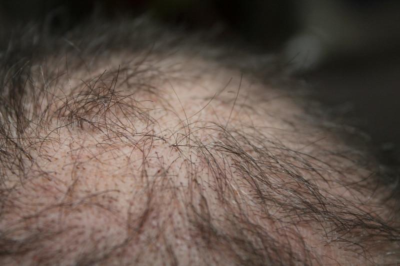 Medikamente gegen Haarausfall - bezahlt die Krankenkasse?