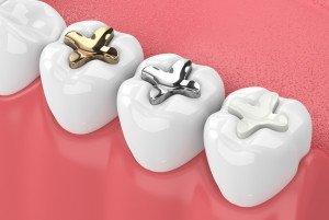 Zahnfüllungen aus Amalgam sollen verboten werden, (c) getty Images / ayo888