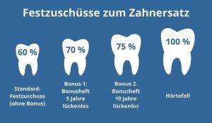 Festzuschuss Zahnersatz